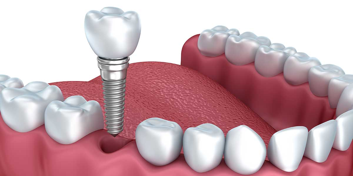 Single Tooth Dental Implant Illustration